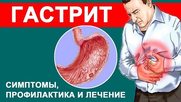 Проблема острого и хронического гастрита