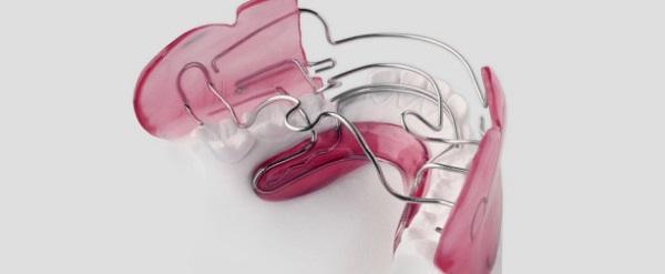 Основные ортодонтические аппараты