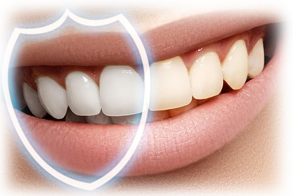Что представляет собой эрозия зубной эмали?